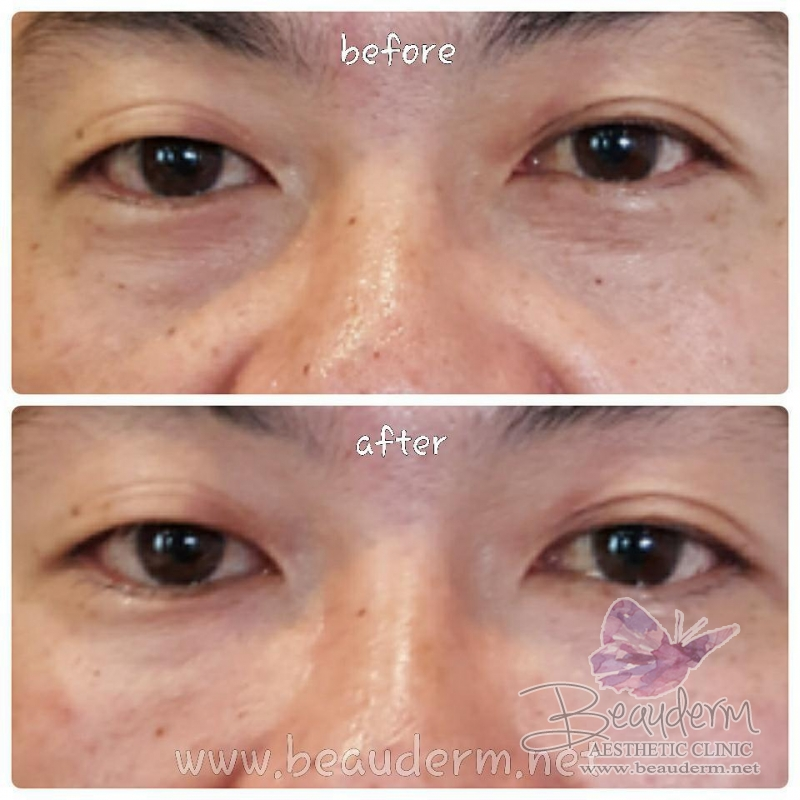 Gallery Under Eye Filler Before After