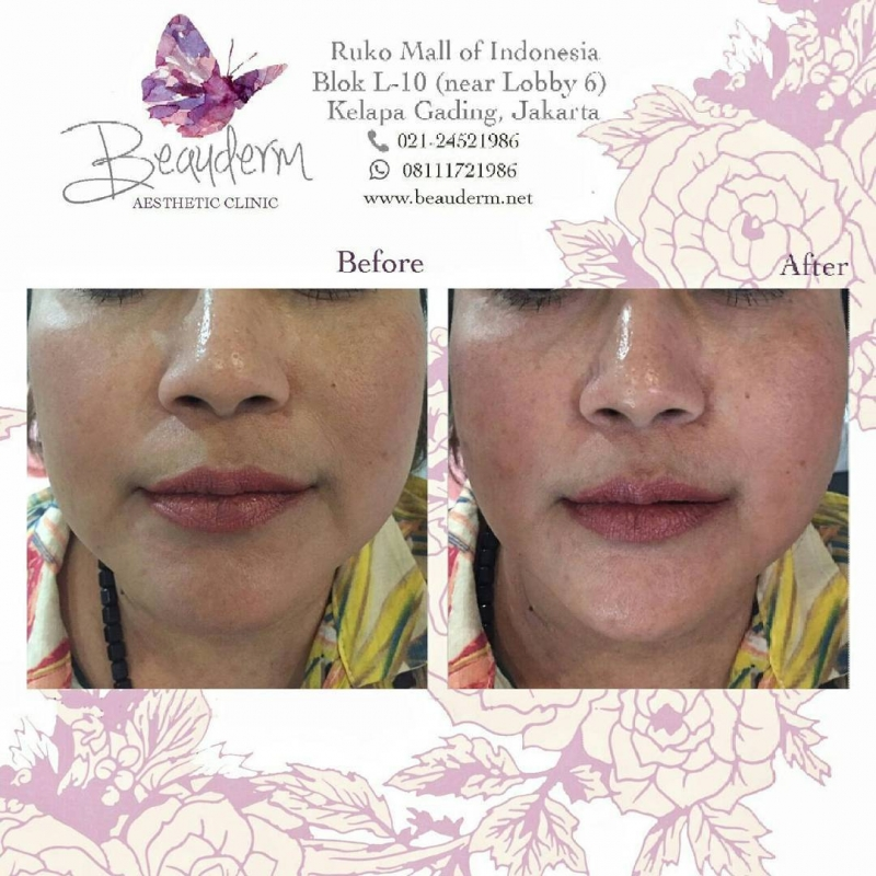 Gallery Tanam Benang Threadlift Before After