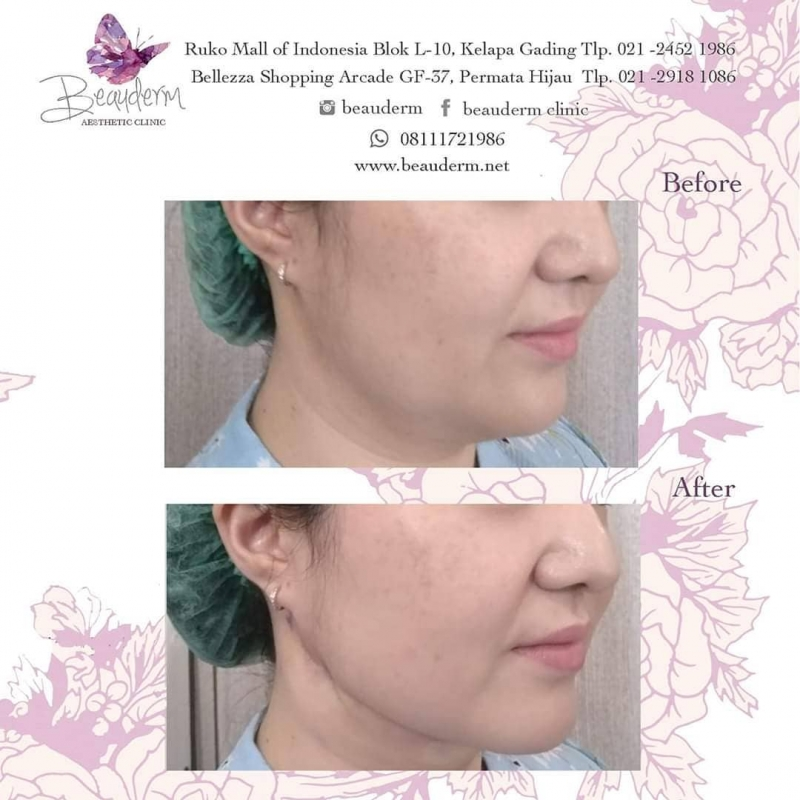 Gallery Chin Augmentation / Filler Dagu Before After