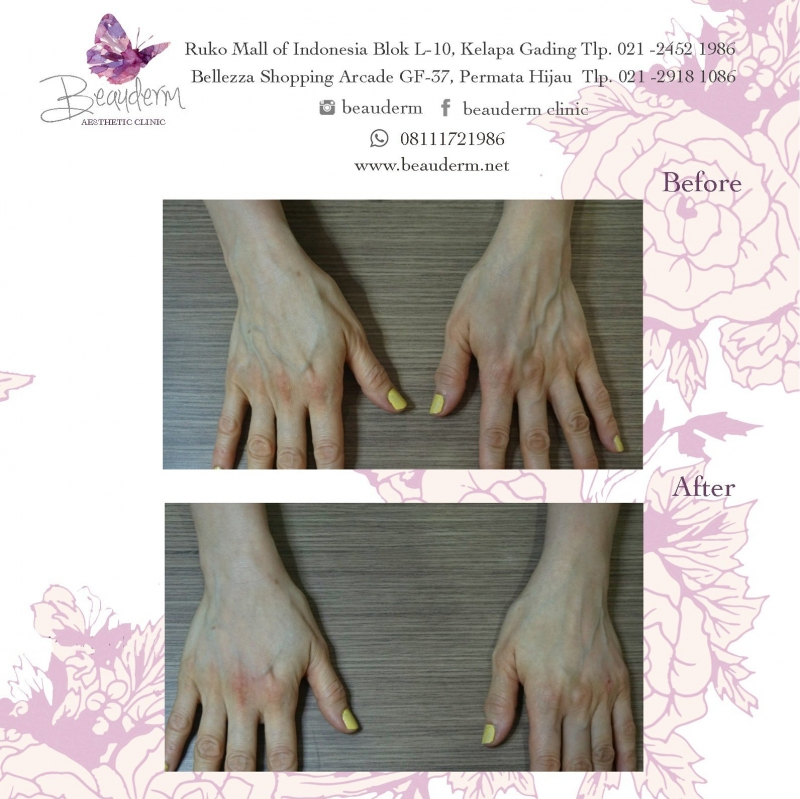 Gallery Hand Rejuvenation Before After