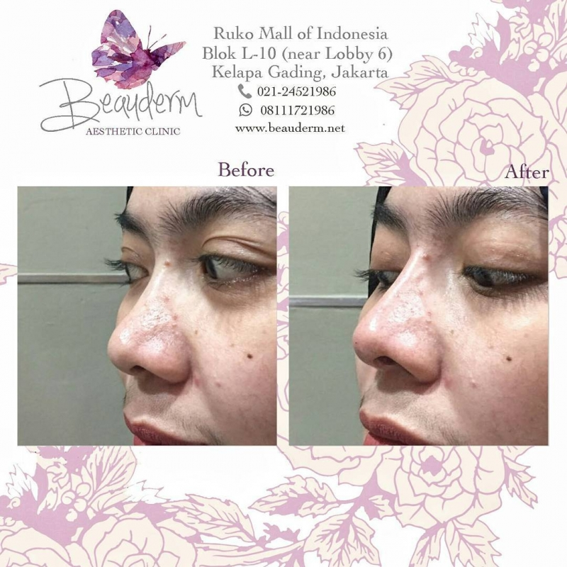 Gallery Filler Hidung / Nose Filler Before After