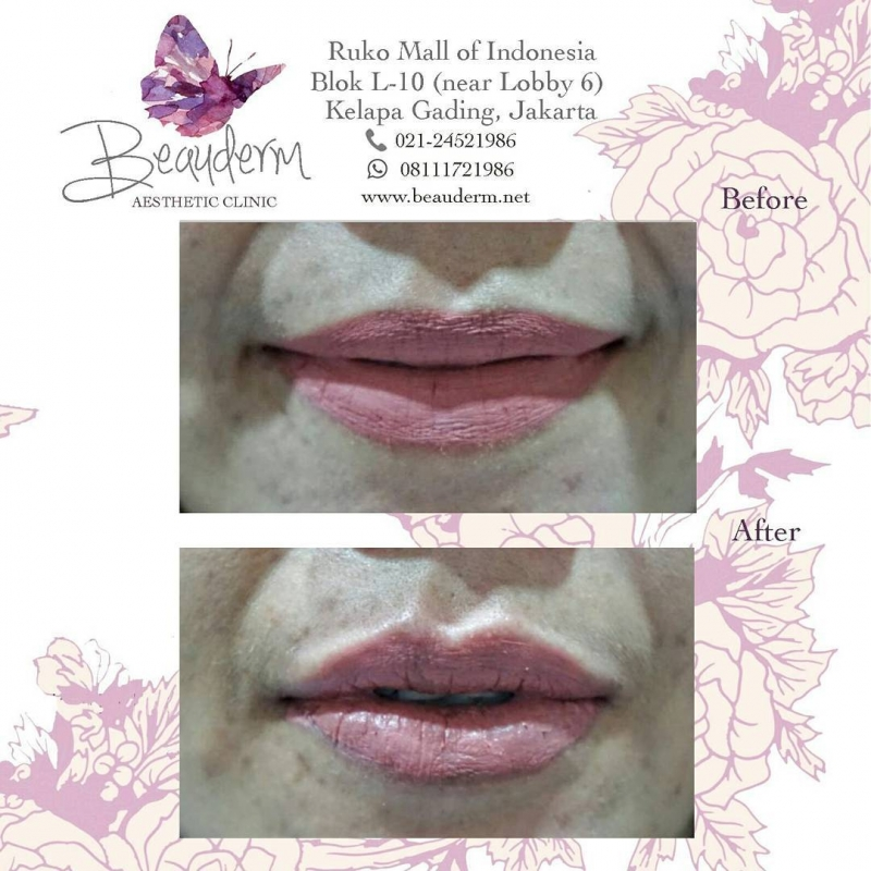 Gallery Lips Filler / Filler Bibir Before After