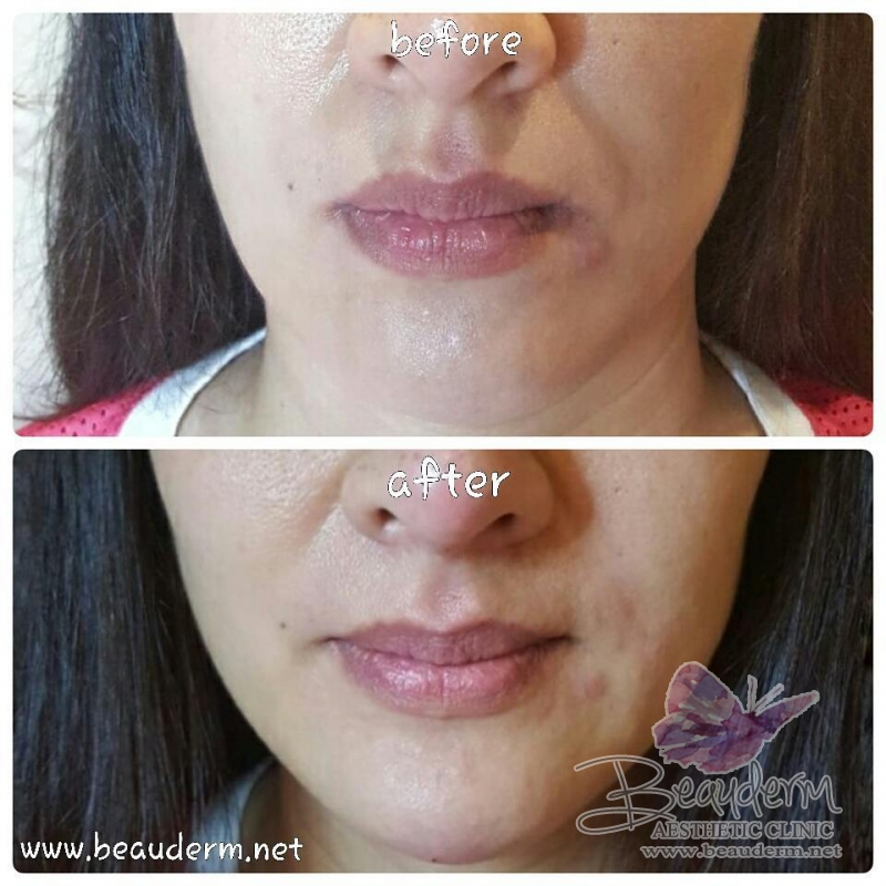 Gallery Smile Line Filler Before After