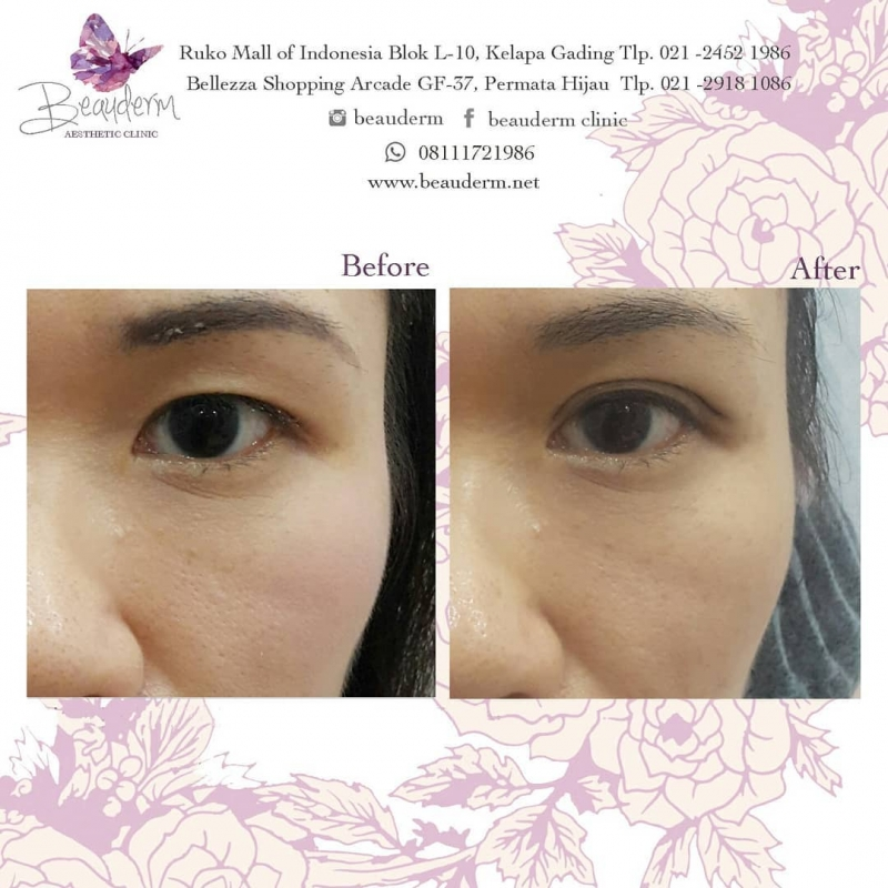 Gallery Double Eyelid Stitching Before After