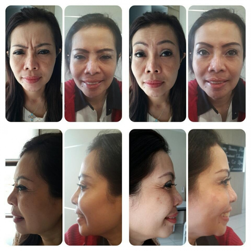 Gallery Botox Dahi Before After