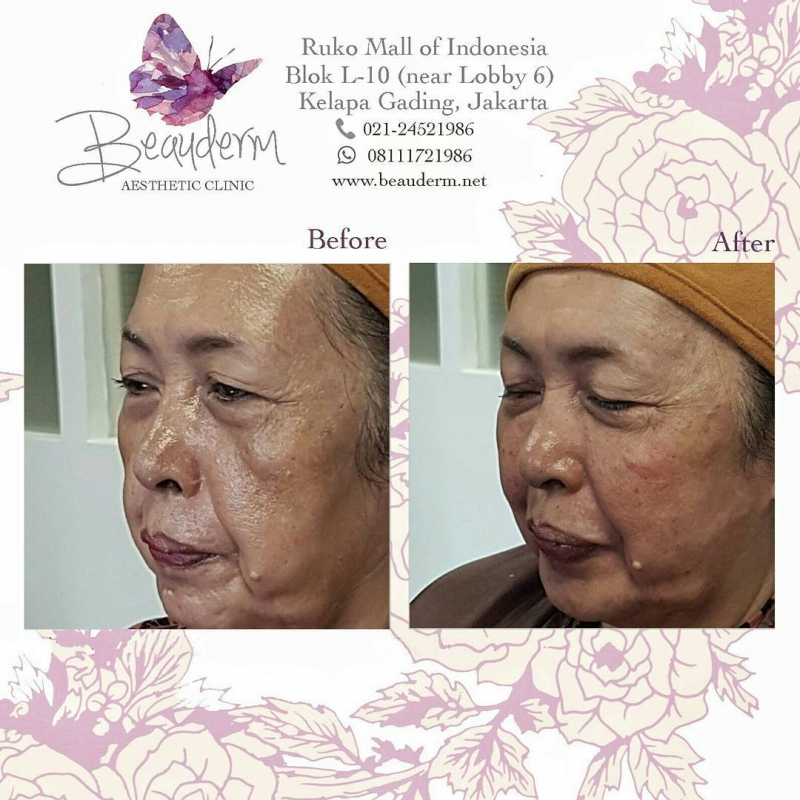 Gallery Mid Face Filler Before After