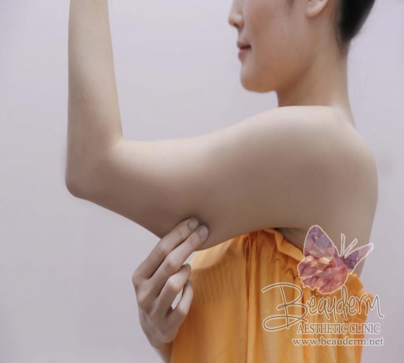 Mesoslim Body Injection